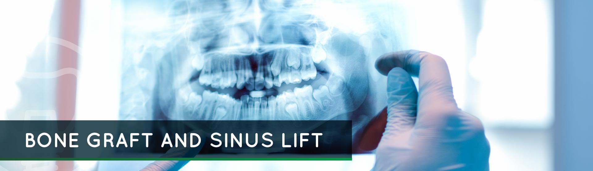 Bone Graft and Sinus Lift – Cosmetic Dental Care and Implant