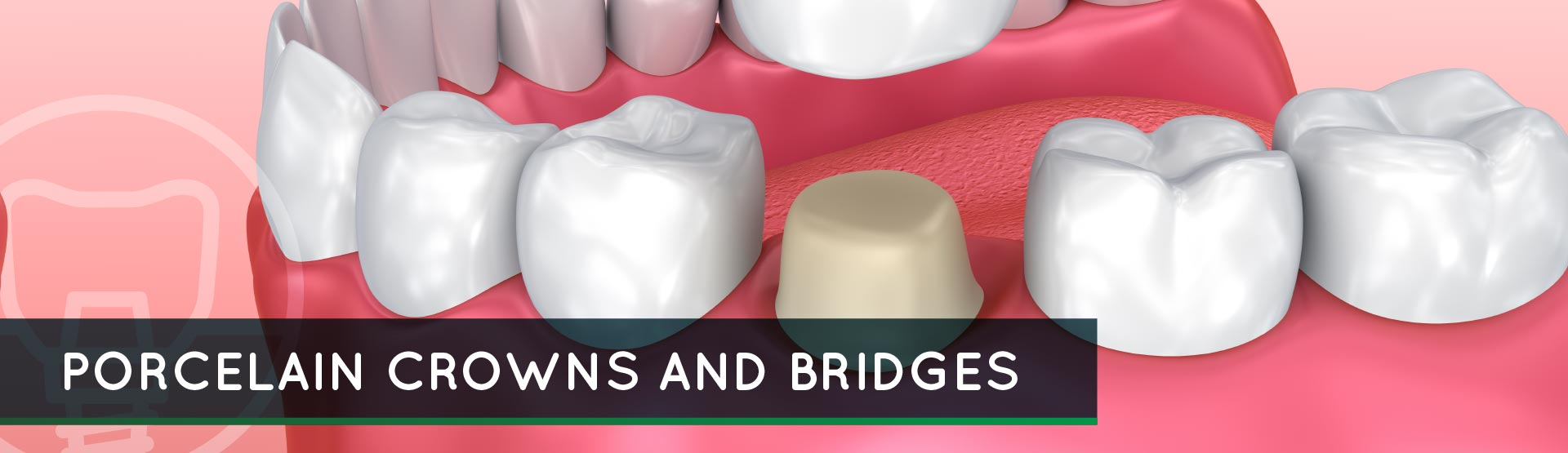 Porcelain Crowns and Bridges – Cosmetic Dental Care and