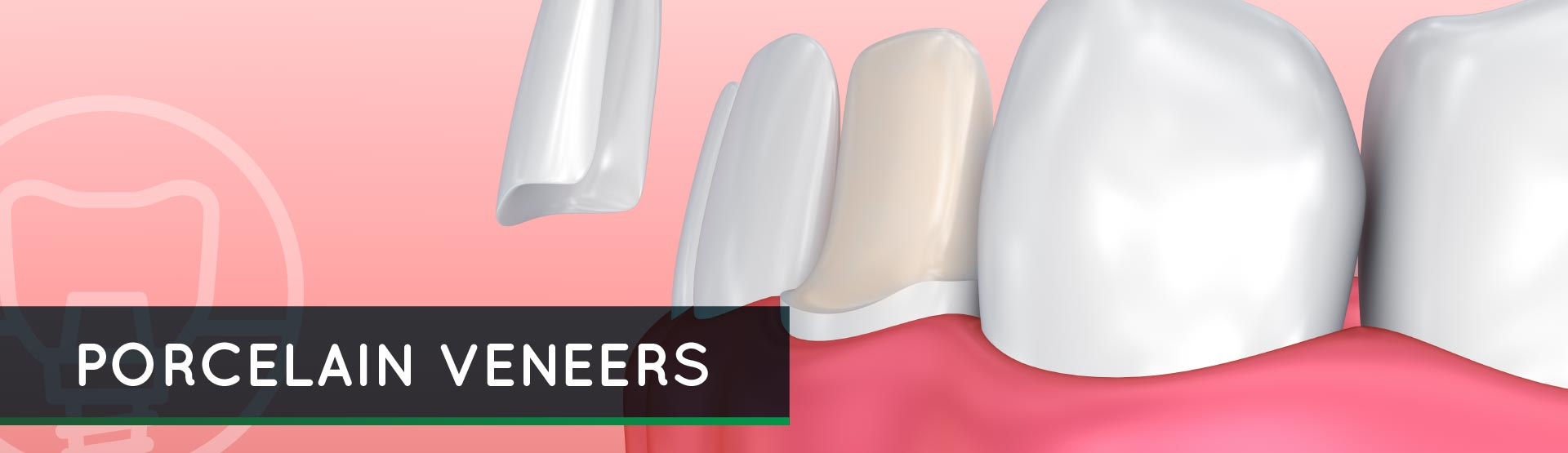 Porcelain Veneers – Cosmetic Dental Care and Implant Center